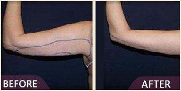 arm liposuction results