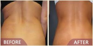 before after liposuction