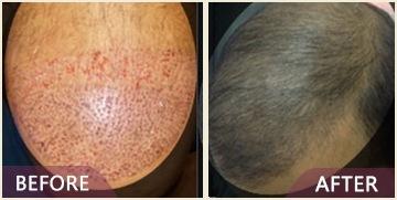 hair transplant results in mumbai