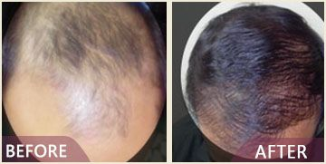 hair transplant before after
