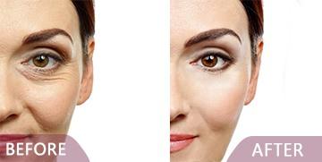 best Dermal surgery before after