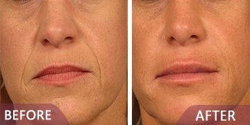 better Dermal Filler treatments before and after