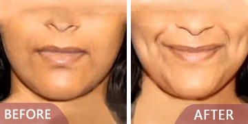 dimple creation before after