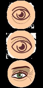 Eyelid Surgery in mumbai