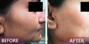 laser hair remove before after image