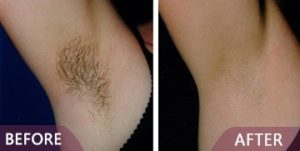 laser hair removel treatment before after