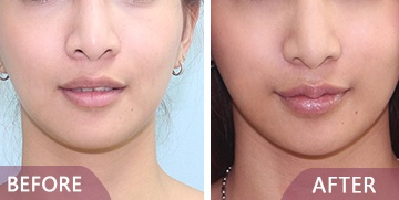 Lip surgery before after