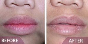 Lip surgery results