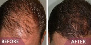 hair loss treatment results