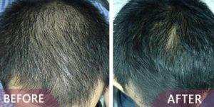 hair loss results