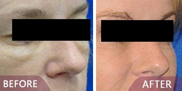 face surgery before after