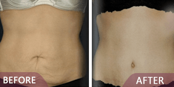 abdominoplasty before after