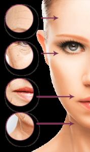Types of Botox Treatment