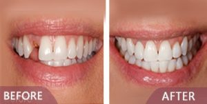 dental surgery before after