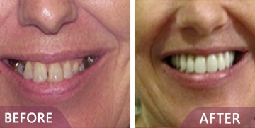 dental before after