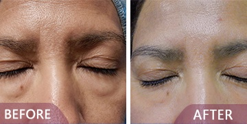 before after eyelid surgery