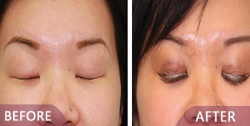 before after eyelid surgery results