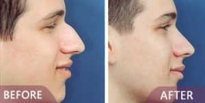 male rhinoplasty before after