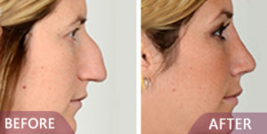 before after rhinoplasty results